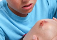 Boy with scraped knee